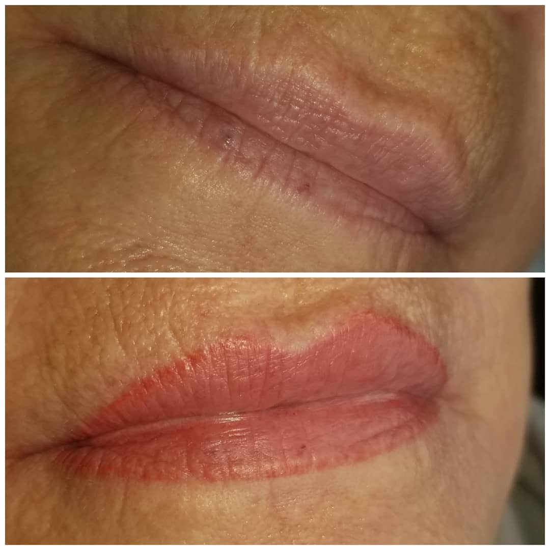 Lip Treatments, Permanent